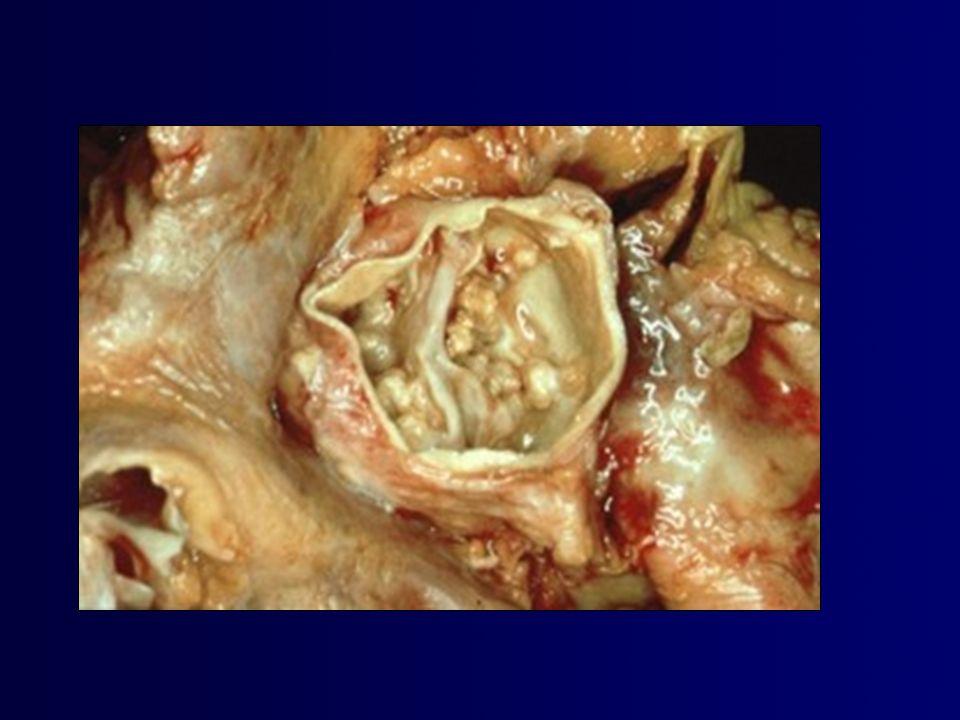 Calcificación valvular detectada por ecocardiografía (>1 mm of ecos-brillantes) al inicio de diálisis y sobrevida libre de eventos cardiovasculares en pacientes con IRT ASN 2007