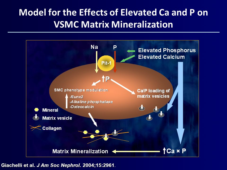 Model for the Effects of Elevated Ca and P on VSMC Matrix Mineralization Giachelli et al. J Am Soc Nephrol. 2004;15:2961.