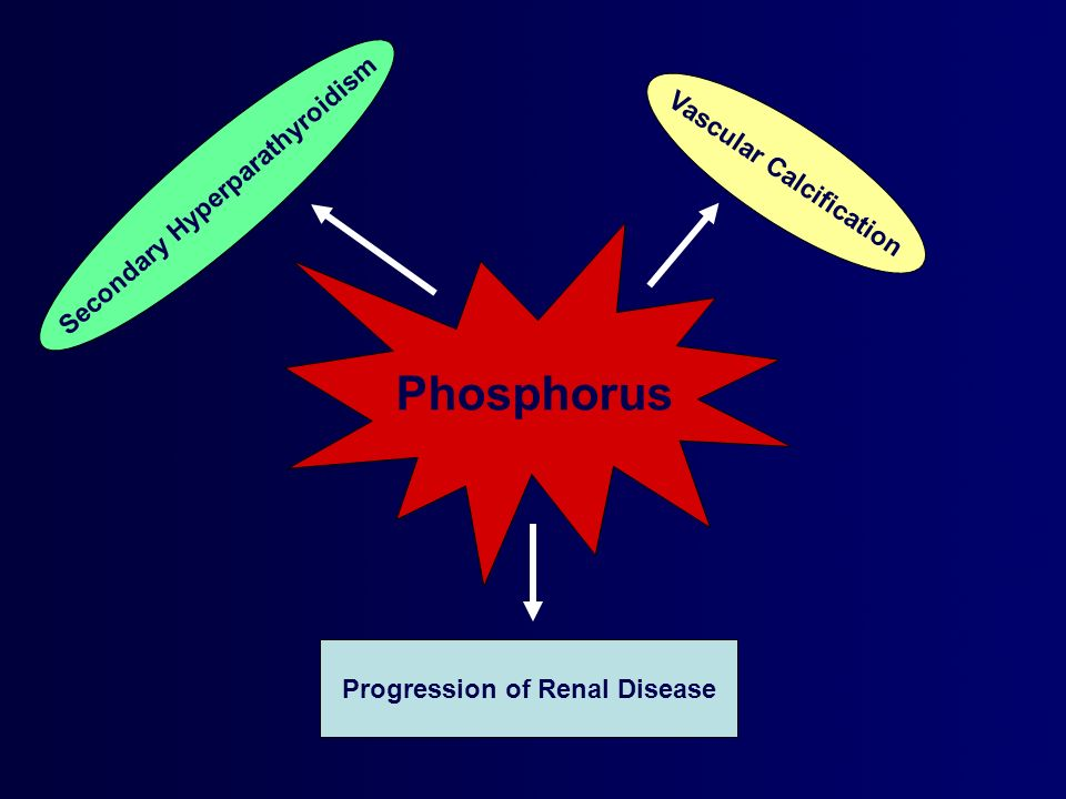 Phosphorus Progression of Renal Disease Vascular Calcification Secondary Hyperparathyroidism