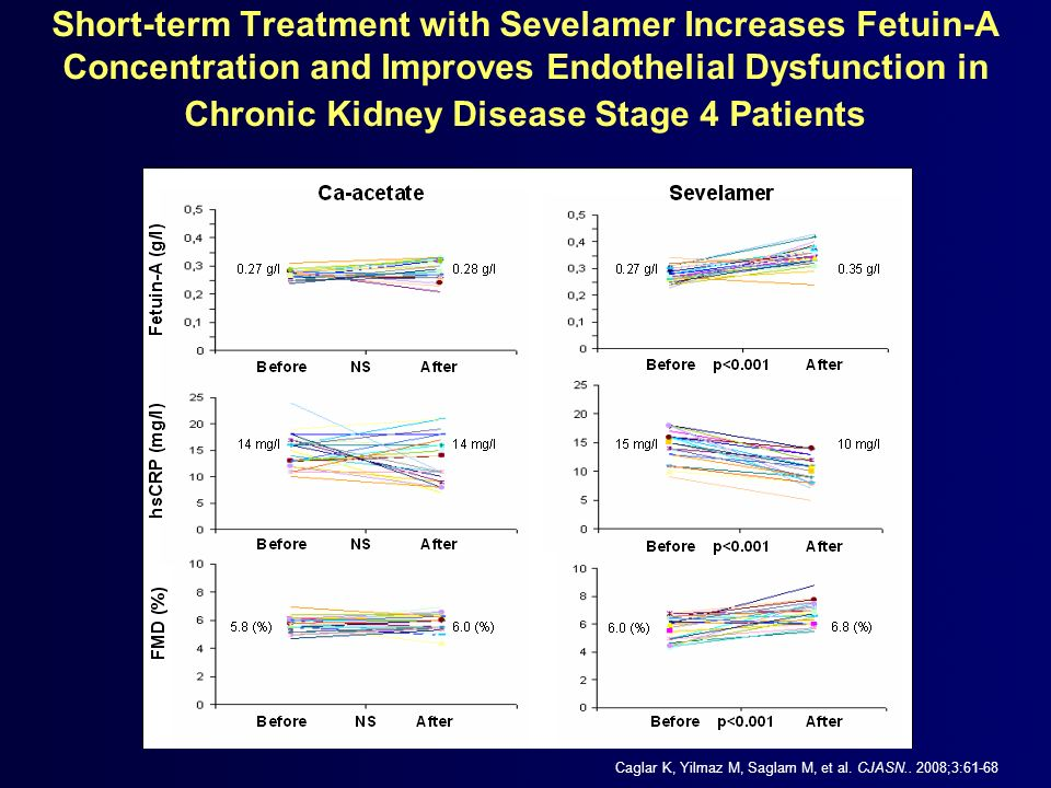 Short-term Treatment with Sevelamer Increases Fetuin-A Concentration and Improves Endothelial Dysfunction in Chronic Kidney Disease Stage 4 Patients C