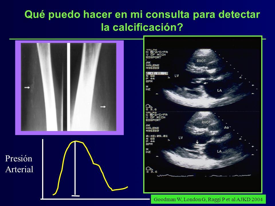 Qué puedo hacer en mi consulta para detectar la calcificación? Presión Arterial Goodman W, London G, Raggi P et al AJKD 2004