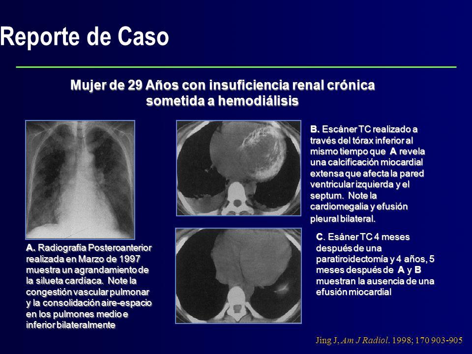 Reporte de Caso Mujer de 29 Años con insuficiencia renal crónica sometida a hemodiálisis A. Radiografía Posteroanterior realizada en Marzo de 1997 mue