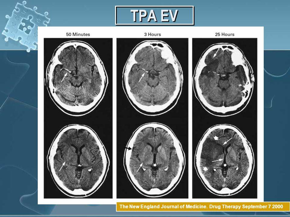 TPA EV The New England Journal of Medicine. Drug Therapy September 7 2000