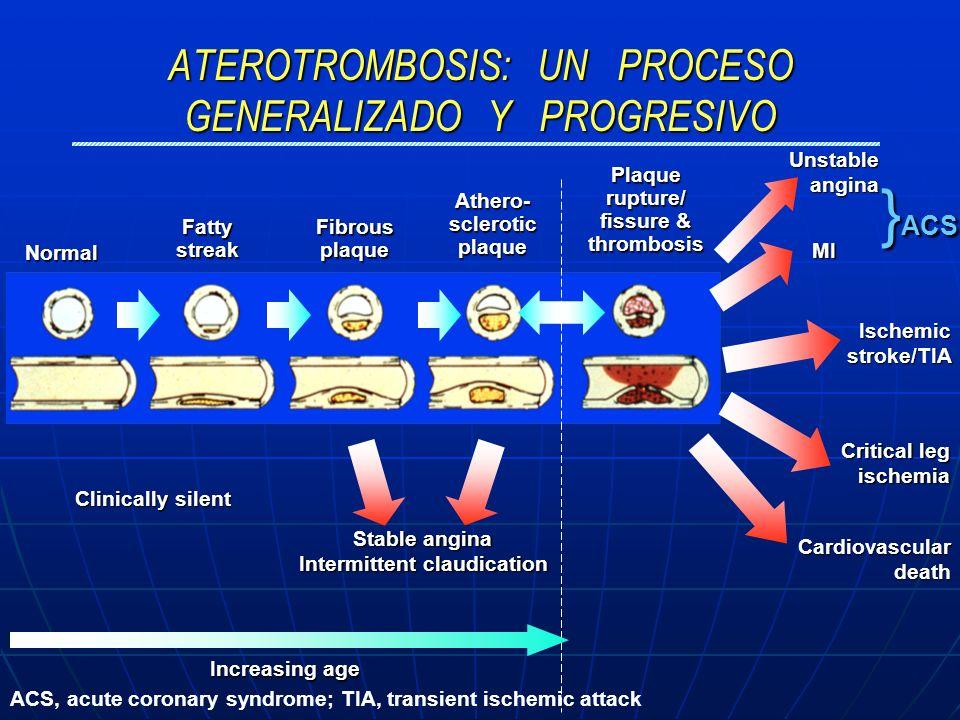 ATEROTROMBOSIS: UN PROCESO GENERALIZADO Y PROGRESIVO Normal Fatty streak Fibrous plaque Athero- sclerotic plaque Plaque rupture/ fissure & thrombosis