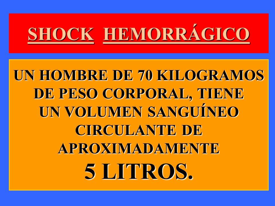SHOCK HEMORRÁGICO UN HOMBRE DE 70 KILOGRAMOS DE PESO CORPORAL, TIENE UN VOLUMEN SANGUÍNEO CIRCULANTE DE APROXIMADAMENTE 5 LITROS.