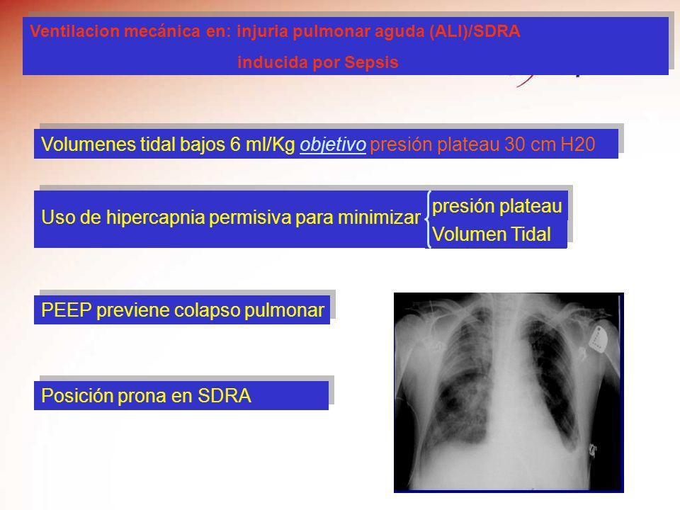 Ventilacion mecánica en: injuria pulmonar aguda (ALI)/SDRA inducida por Sepsis Ventilacion mecánica en: injuria pulmonar aguda (ALI)/SDRA inducida por