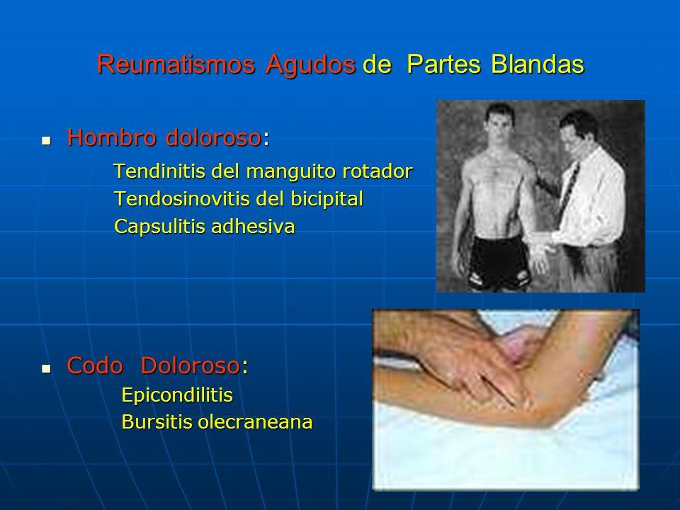 Artrosis: Formas idiopáticas Manos : Nódulos de Heberden y Bouchard Manos : Nódulos de Heberden y Bouchard