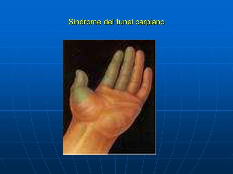 Artritis Reumatoide Enfermedad crónica, sistemica, de etiología desconocida que afecta de forma predominante la articulaciones periféricas, produciendo sinovitis inflamatoria de distribución simétrica.