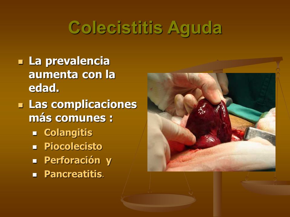 Colecistitis Aguda La prevalencia aumenta con la edad. La prevalencia aumenta con la edad. Las complicaciones más comunes : Las complicaciones más com