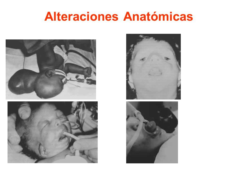 Alteraciones Anatómicas