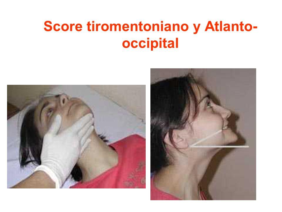 Score tiromentoniano y Atlanto- occipital