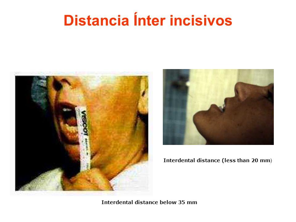 Distancia Ínter incisivos Interdental distance below 35 mm Interdental distance (less than 20 mm )
