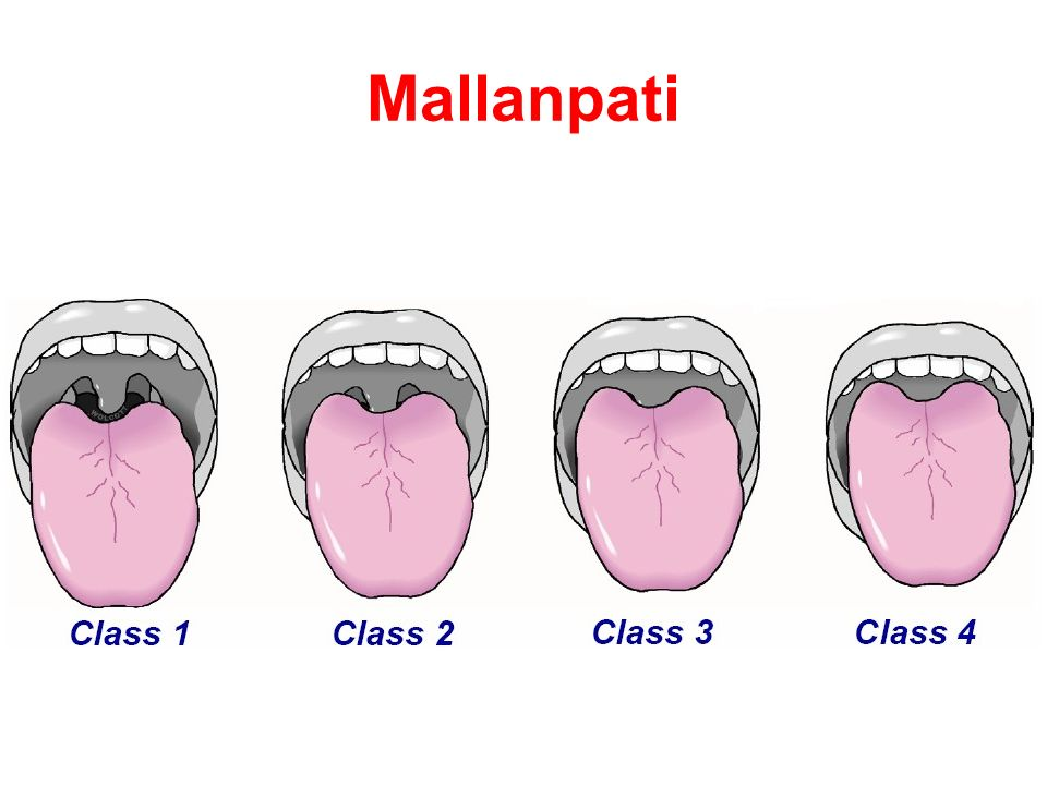 Mallanpati