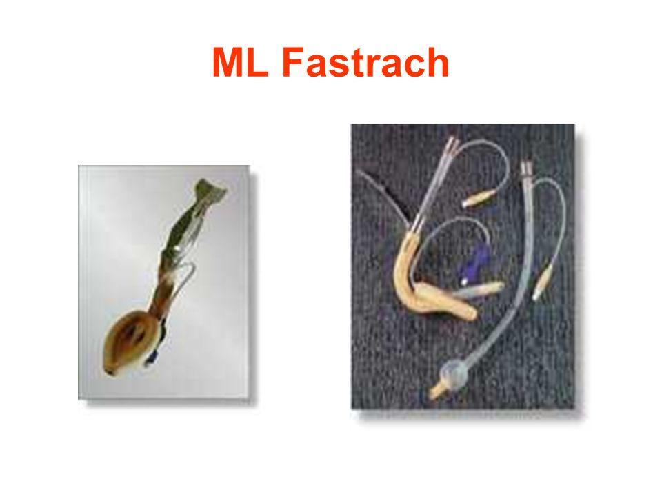 ML Fastrach