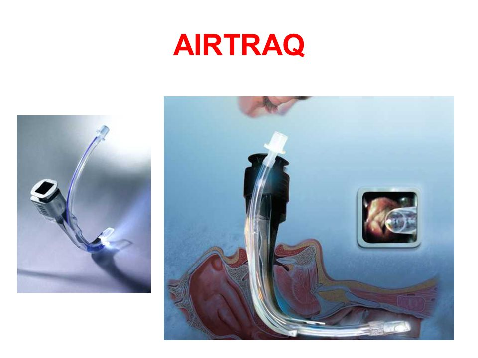 AIRTRAQ