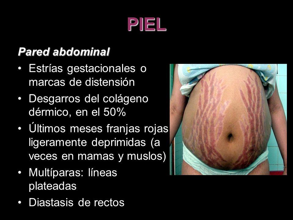 PIEL Pared abdominal Estrías gestacionales o marcas de distensión Desgarros del colágeno dérmico, en el 50% Últimos meses franjas rojas ligeramente de