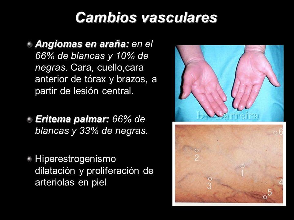 Cambios vasculares Angiomas en araña: Angiomas en araña: en el 66% de blancas y 10% de negras. Cara, cuello,cara anterior de tórax y brazos, a partir