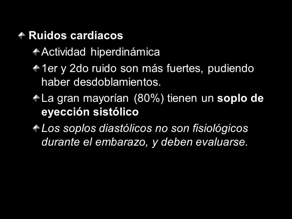 Ruidos cardiacos Actividad hiperdinámica 1er y 2do ruido son más fuertes, pudiendo haber desdoblamientos. La gran mayorían (80%) tienen un soplo de ey