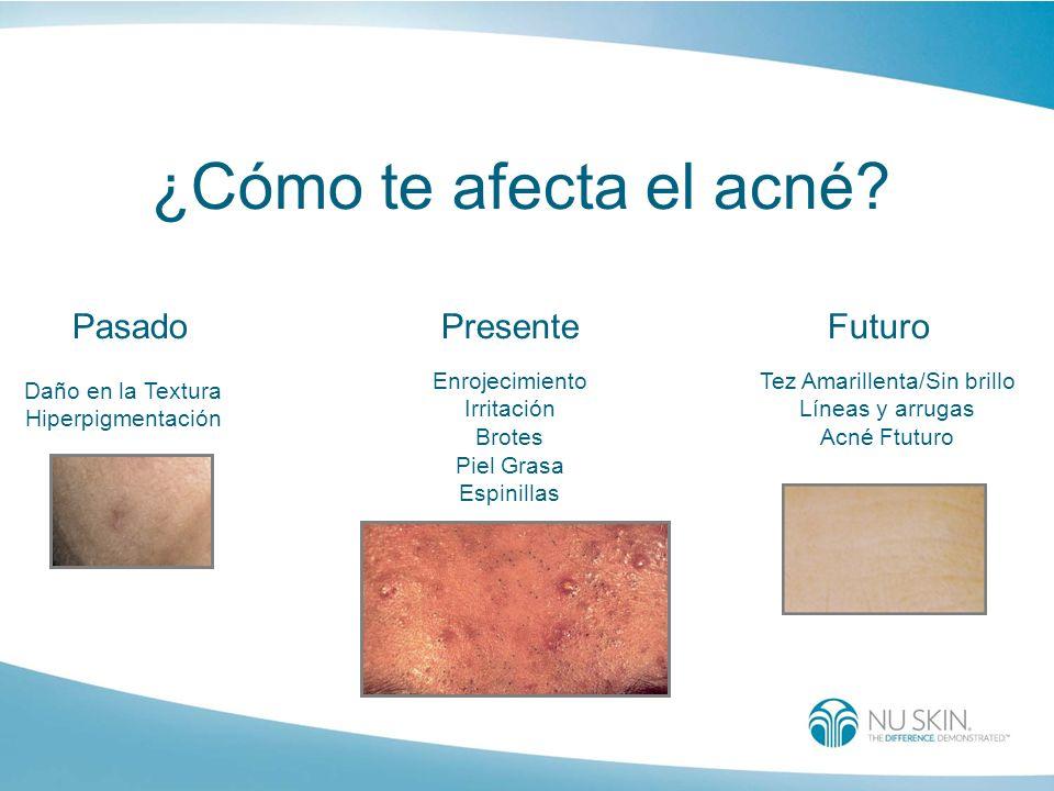 ¿Cómo te afecta el acné? PasadoFuturoPresente Daño en la Textura Hiperpigmentación Enrojecimiento Irritación Brotes Piel Grasa Espinillas Tez Amarille