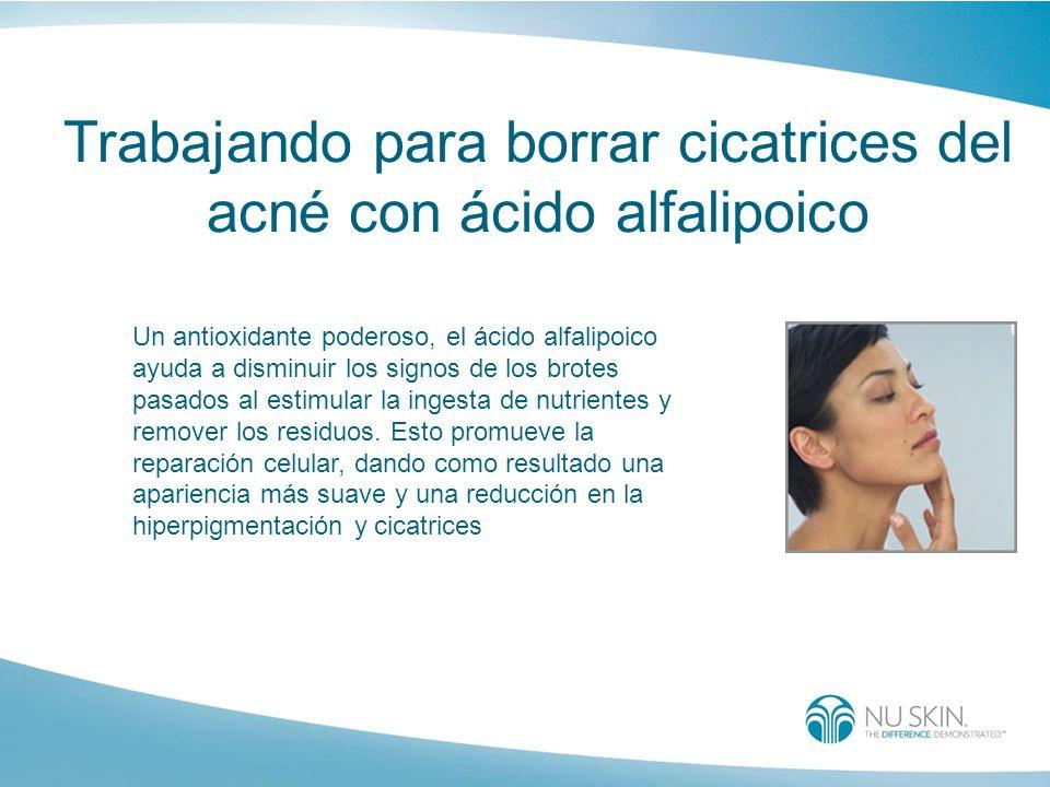 Trabajando para borrar cicatrices del acné con ácido alfalipoico Un antioxidante poderoso, el ácido alfalipoico ayuda a disminuir los signos de los br