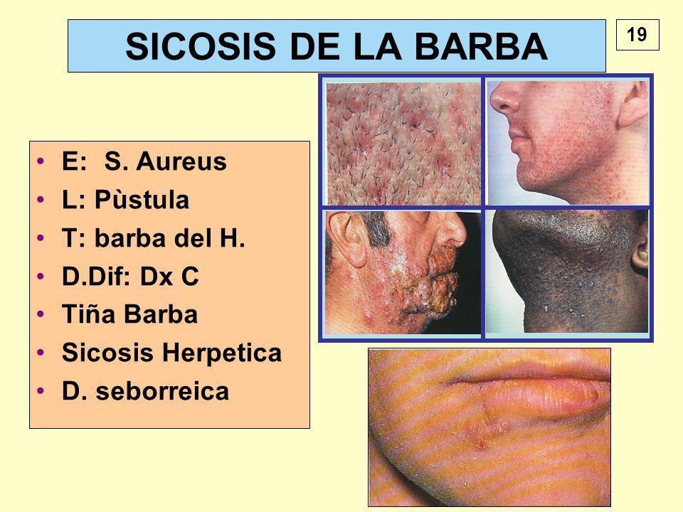 SICOSIS DE LA BARBA E: S. Aureus L: Pùstula T: barba del H. D.Dif: Dx C Tiña Barba Sicosis Herpetica D. seborreica 19