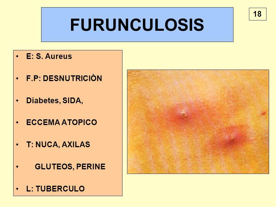 FURUNCULOSIS E: S. Aureus F.P: DESNUTRICIÒN Diabetes, SIDA, ECCEMA ATOPICO T: NUCA, AXILAS GLUTEOS, PERINE L: TUBERCULO 18