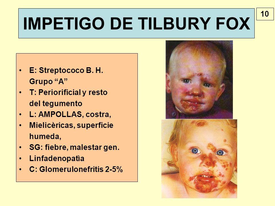 IMPETIGO DE TILBURY FOX E: Streptococo B. H. Grupo A T: Periorificial y resto del tegumento L: AMPOLLAS, costra, Mielicèricas, superficie humeda, SG: