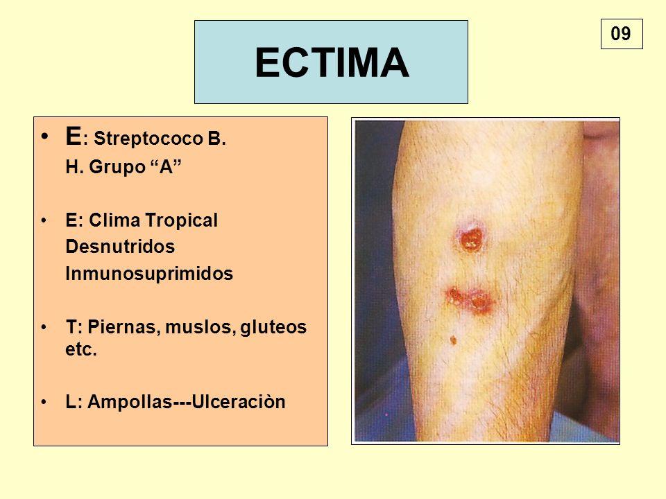 ECTIMA E : Streptococo B. H. Grupo A E: Clima Tropical Desnutridos Inmunosuprimidos T: Piernas, muslos, gluteos etc. L: Ampollas---Ulceraciòn 09
