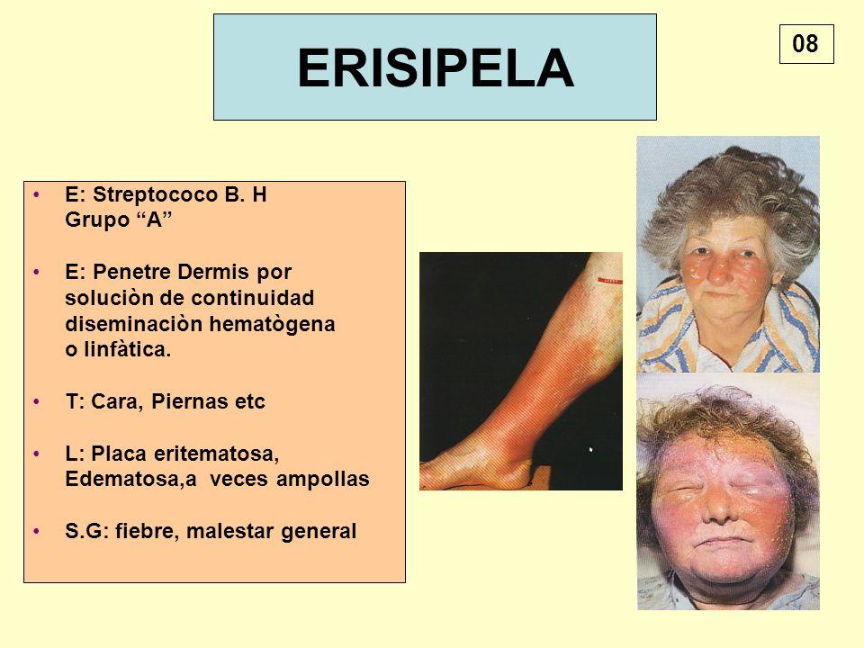 ERISIPELA E: Streptococo B. H Grupo A E: Penetre Dermis por soluciòn de continuidad diseminaciòn hematògena o linfàtica. T: Cara, Piernas etc L: Placa