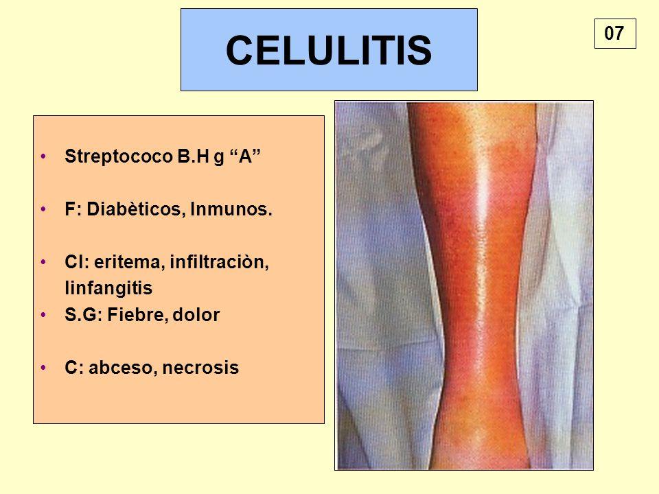 CELULITIS Streptococo B.H g A F: Diabèticos, Inmunos. Cl: eritema, infiltraciòn, linfangitis S.G: Fiebre, dolor C: abceso, necrosis 07