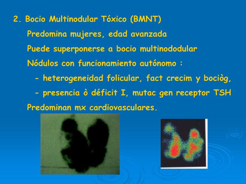 Oftalmopatìa: edema, infiltración linfocitos,cèl plasmà- ticas,neutròfilos y fibrosis en m. oculares y tej retroocular, depósito proteoglicanos Anatom