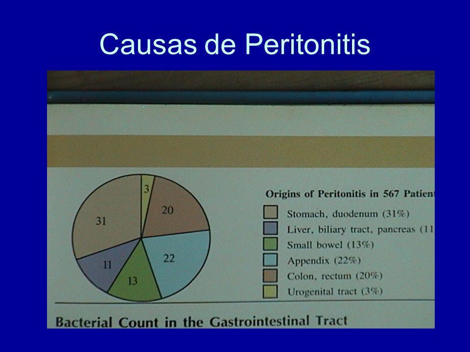 Causas de Peritonitis