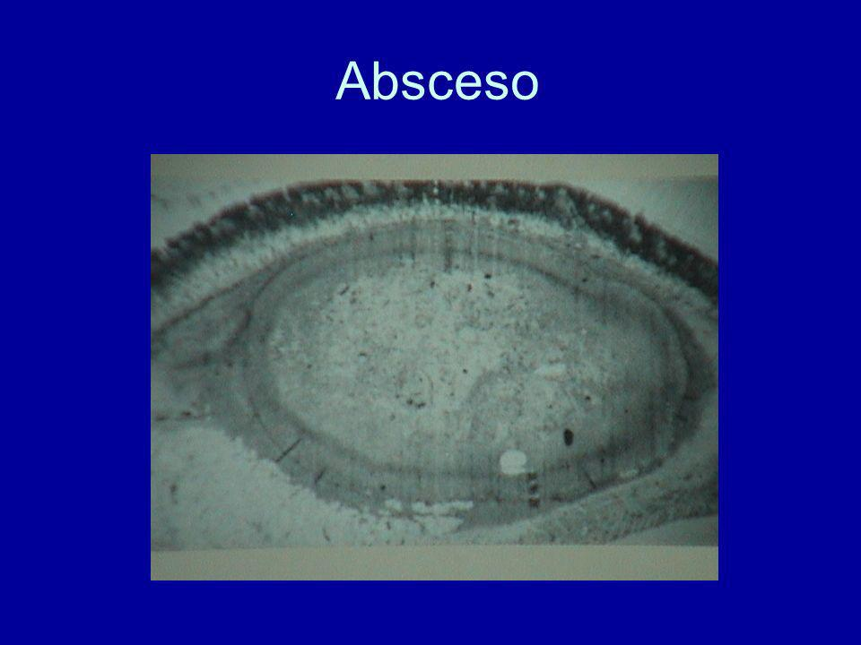 Absceso