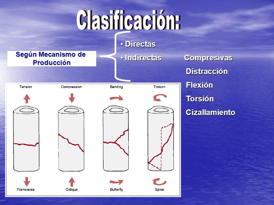 Según Mecanismo de Producción Directas Directas Indirectas Compresivas Indirectas Compresivas Distracción Distracción Flexión Flexión Torsión Torsión Cizallamiento Cizallamiento