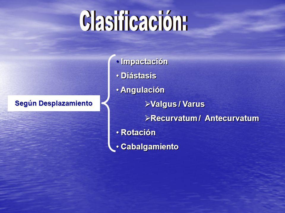 Según Desplazamiento Impactación Impactación Diástasis Diástasis Angulación Angulación Valgus / Varus Valgus / Varus Recurvatum / Antecurvatum Recurvatum / Antecurvatum Rotación Rotación Cabalgamiento Cabalgamiento