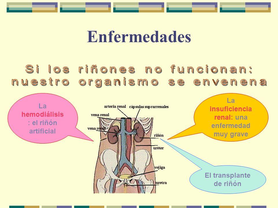 Enfermedades La insuficiencia renal: una enfermedad muy grave La hemodiálisis : el riñón artificial El transplante de riñón