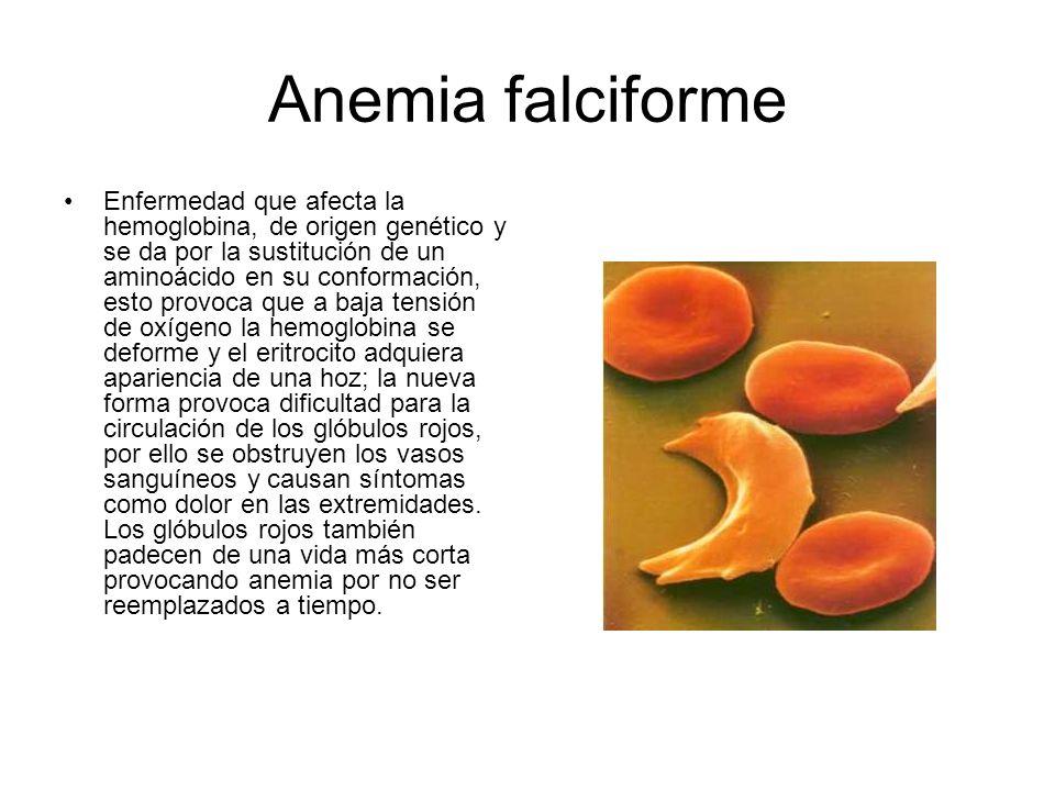 Anemia falciforme Enfermedad que afecta la hemoglobina, de origen genético y se da por la sustitución de un aminoácido en su conformación, esto provoc