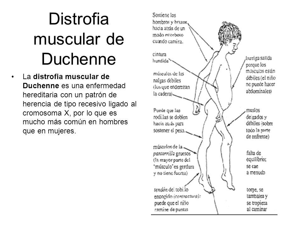 Distrofia muscular de Duchenne La distrofia muscular de Duchenne es una enfermedad hereditaria con un patrón de herencia de tipo recesivo ligado al cr