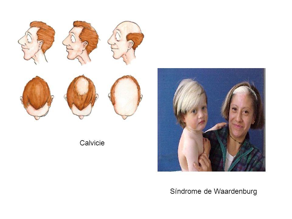 Calvicie Síndrome de Waardenburg