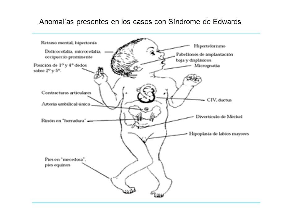 Anomalías presentes en los casos con Síndrome de Edwards