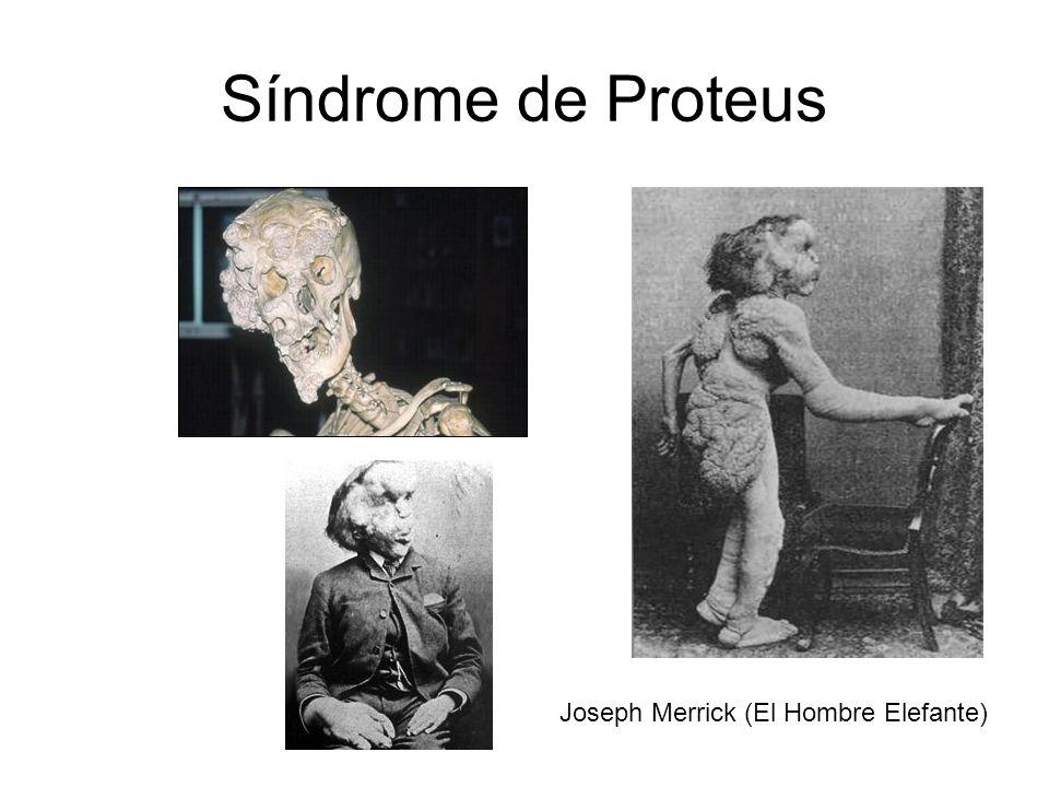 Síndrome de Proteus Joseph Merrick (El Hombre Elefante)