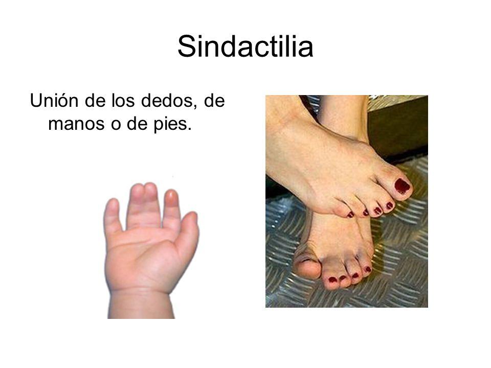 Sindactilia Unión de los dedos, de manos o de pies.