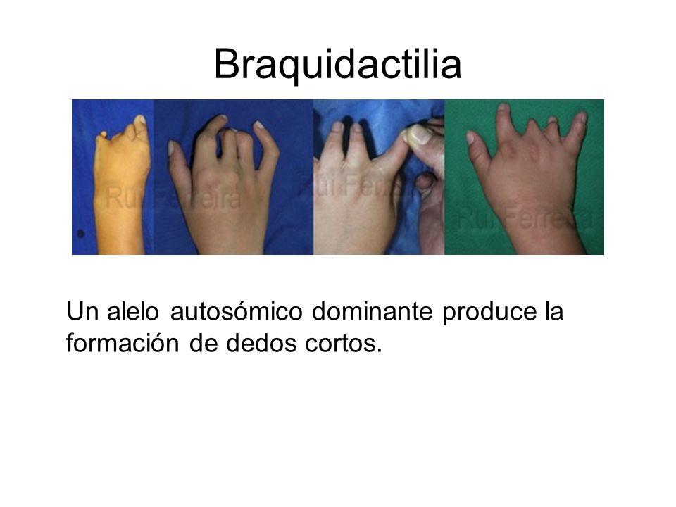Braquidactilia Un alelo autosómico dominante produce la formación de dedos cortos.
