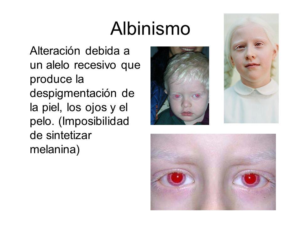 Albinismo Alteración debida a un alelo recesivo que produce la despigmentación de la piel, los ojos y el pelo. (Imposibilidad de sintetizar melanina)