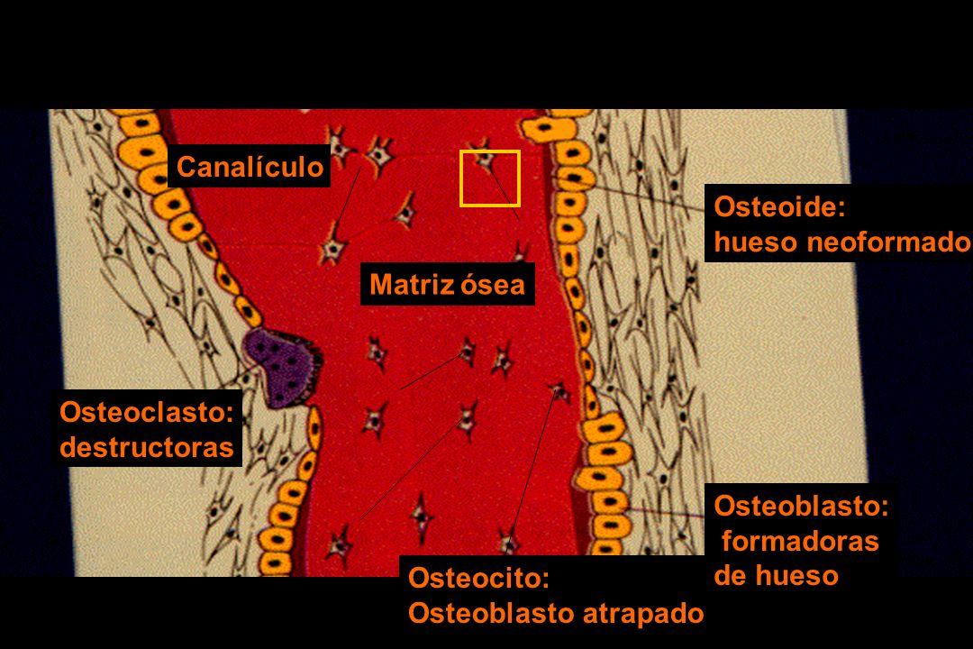 Osteoide: hueso neoformado Osteocito: Osteoblasto atrapado Osteoblasto: formadoras de hueso Osteoclasto: destructoras Matriz ósea Canalículo