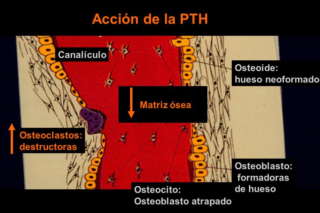 Osteoide: hueso neoformado Osteocito: Osteoblasto atrapado Osteoblasto: formadoras de hueso Osteoclastos: destructoras Matriz ósea Canalículo Acción de la PTH