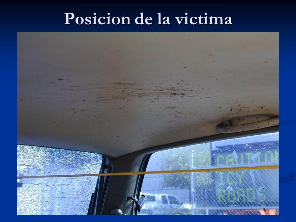 Posicion de la victima