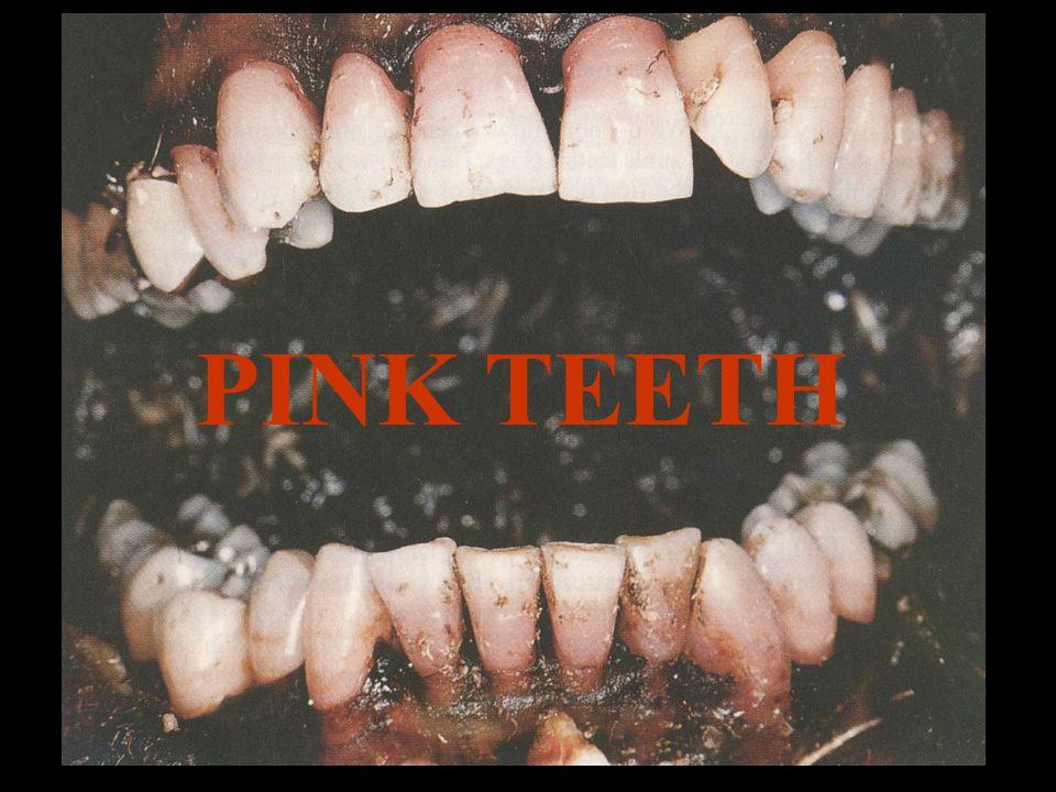 Pink Teeth HISTORIA 1829.