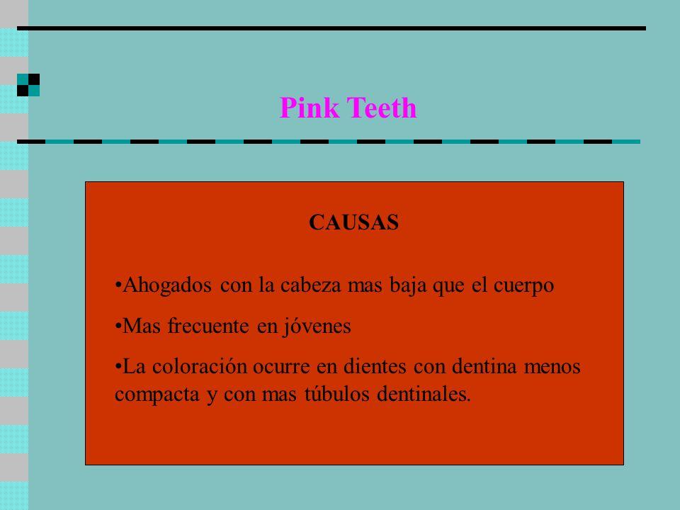 Pink Teeth CAUSAS Ahogados con la cabeza mas baja que el cuerpo Mas frecuente en jóvenes La coloración ocurre en dientes con dentina menos compacta y