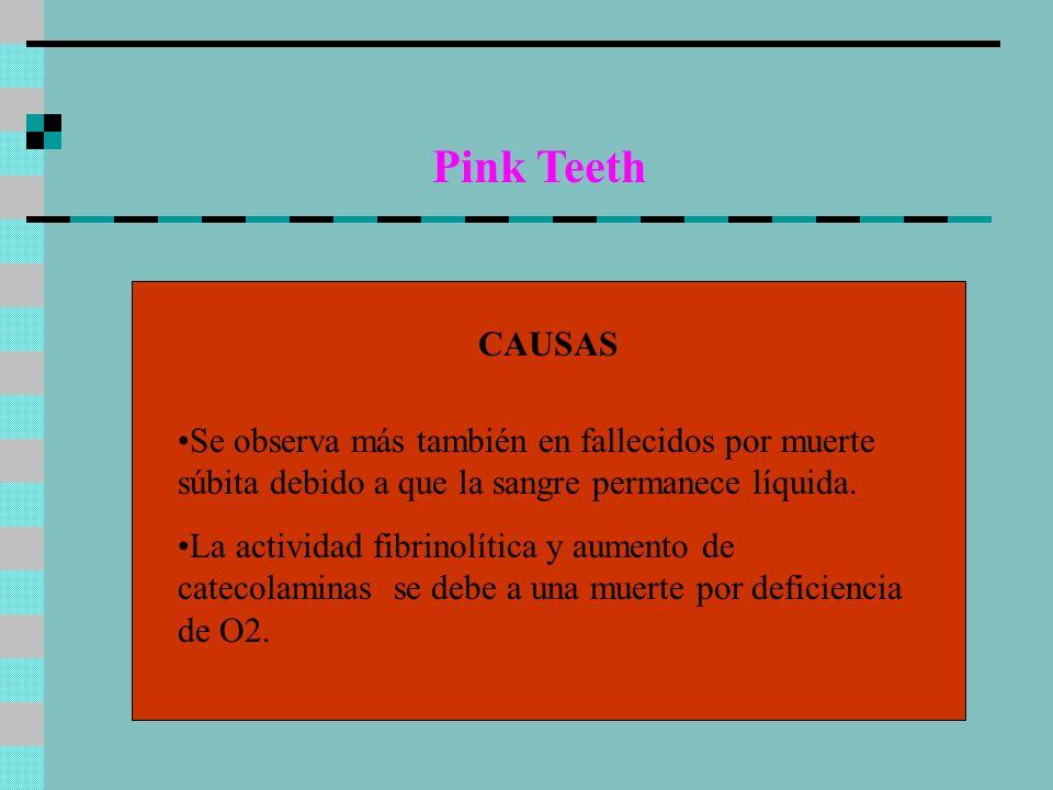 Pink Teeth CAUSAS Se observa más también en fallecidos por muerte súbita debido a que la sangre permanece líquida. La actividad fibrinolítica y aument